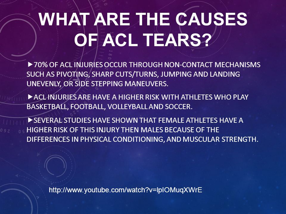WHAT ARE THE CAUSES OF ACL TEARS