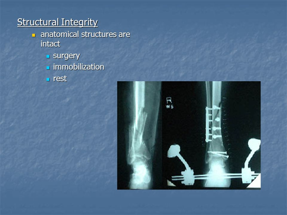 Structural Integrity anatomical structures are intact surgery