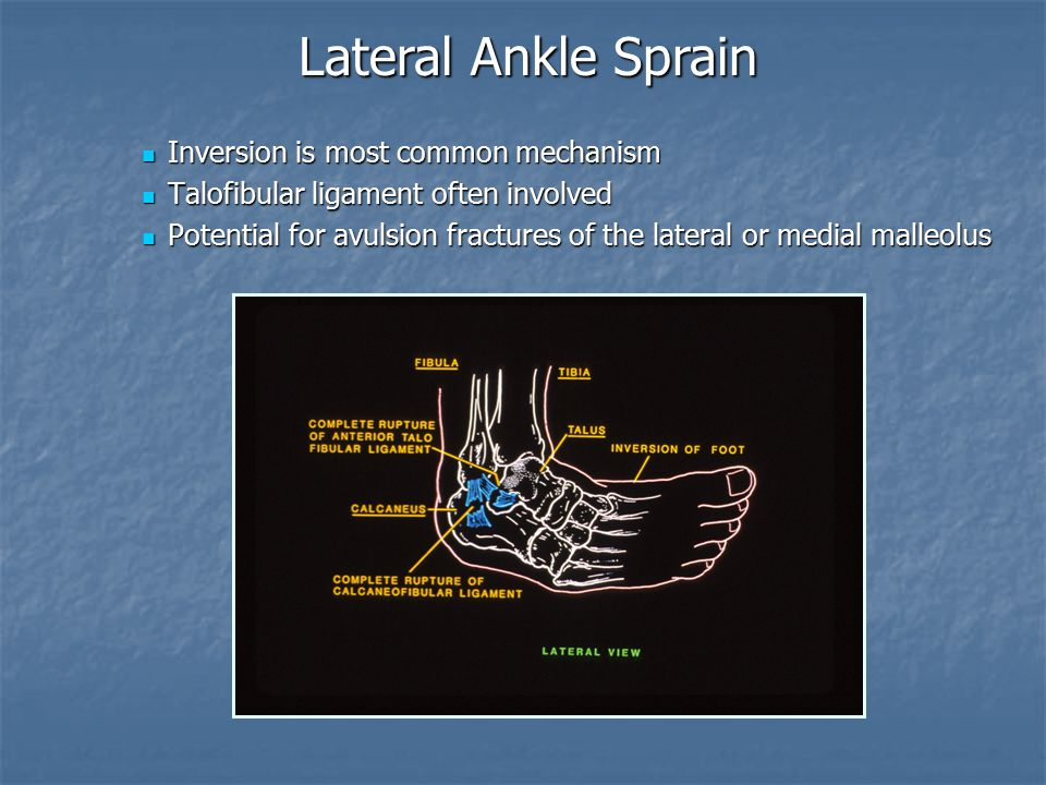 Lateral Ankle Sprain Inversion is most common mechanism