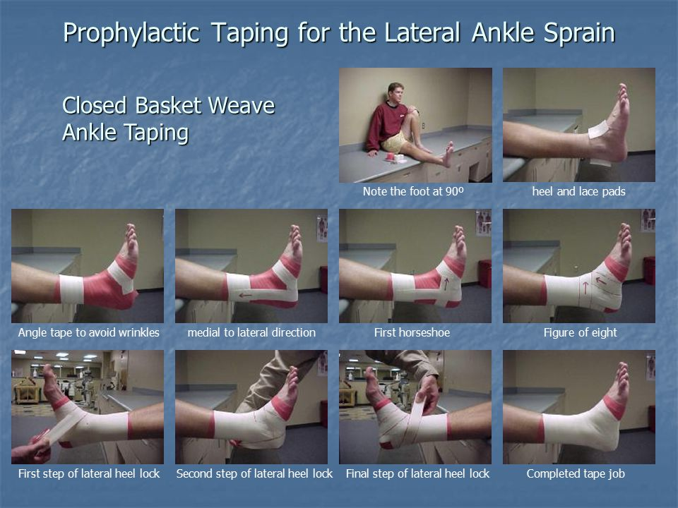 Prophylactic Taping for the Lateral Ankle Sprain