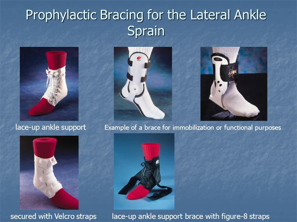 Prophylactic Bracing for the Lateral Ankle Sprain