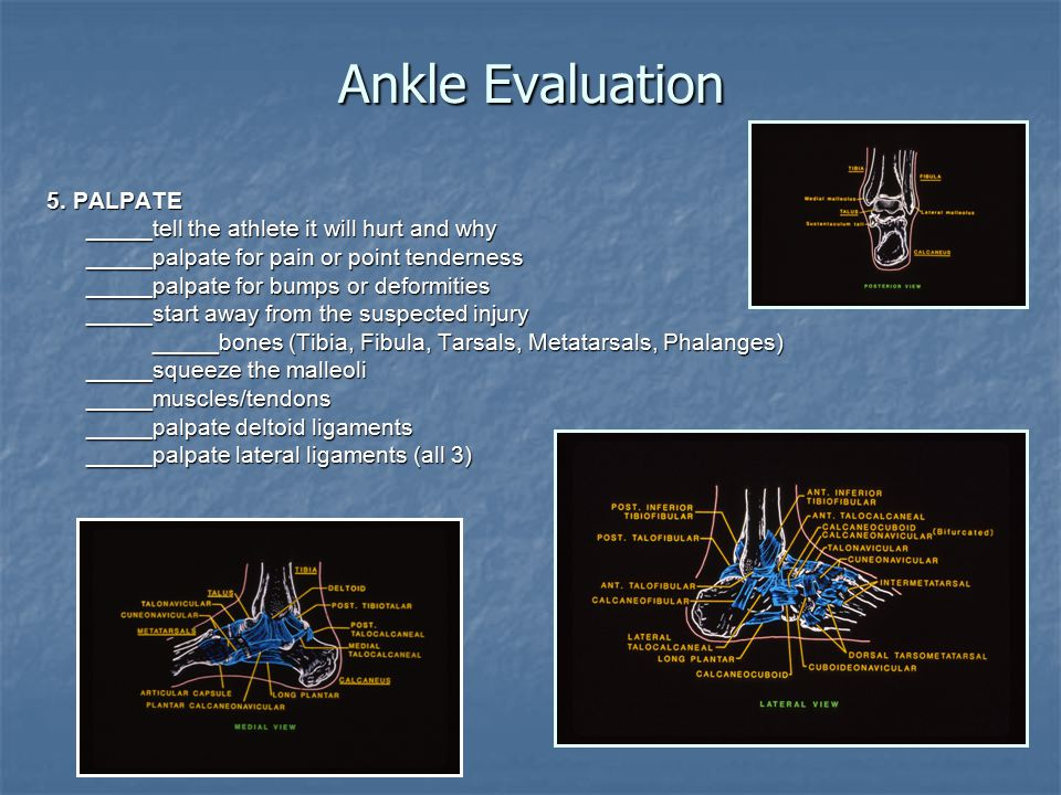 Ankle Evaluation 5. PALPATE _____tell the athlete it will hurt and why