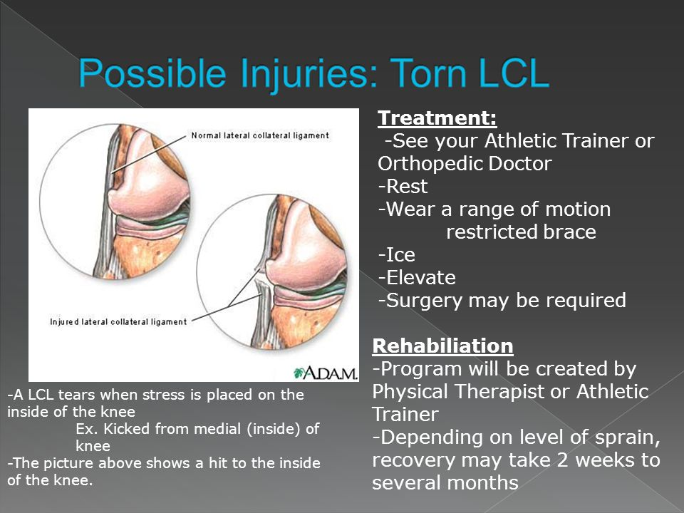 Possible Injuries: Torn LCL