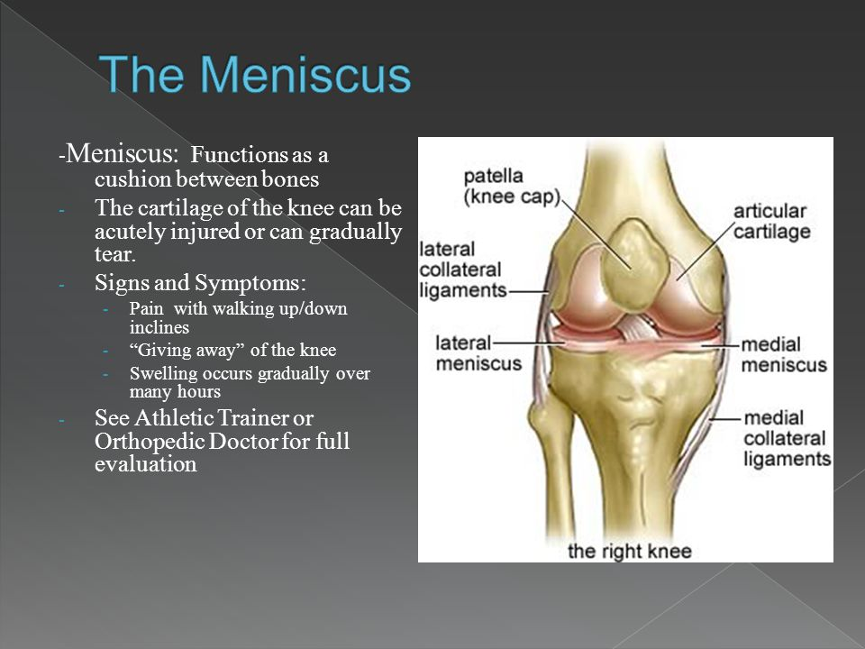 The Meniscus -Meniscus: Functions as a cushion between bones. The cartilage of the knee can be acutely injured or can gradually tear.