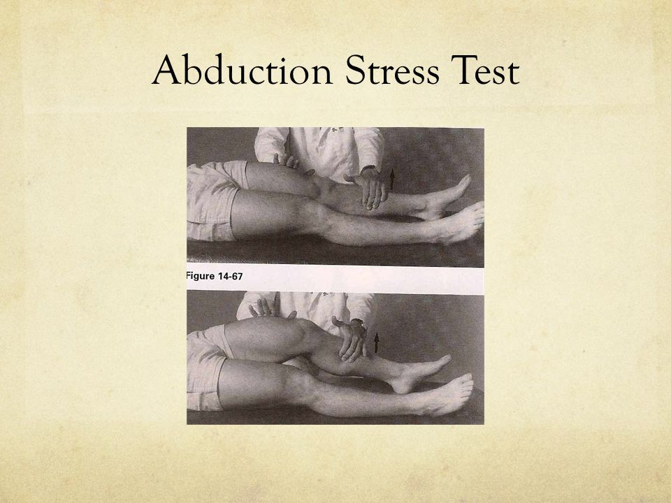 Abduction Stress Test