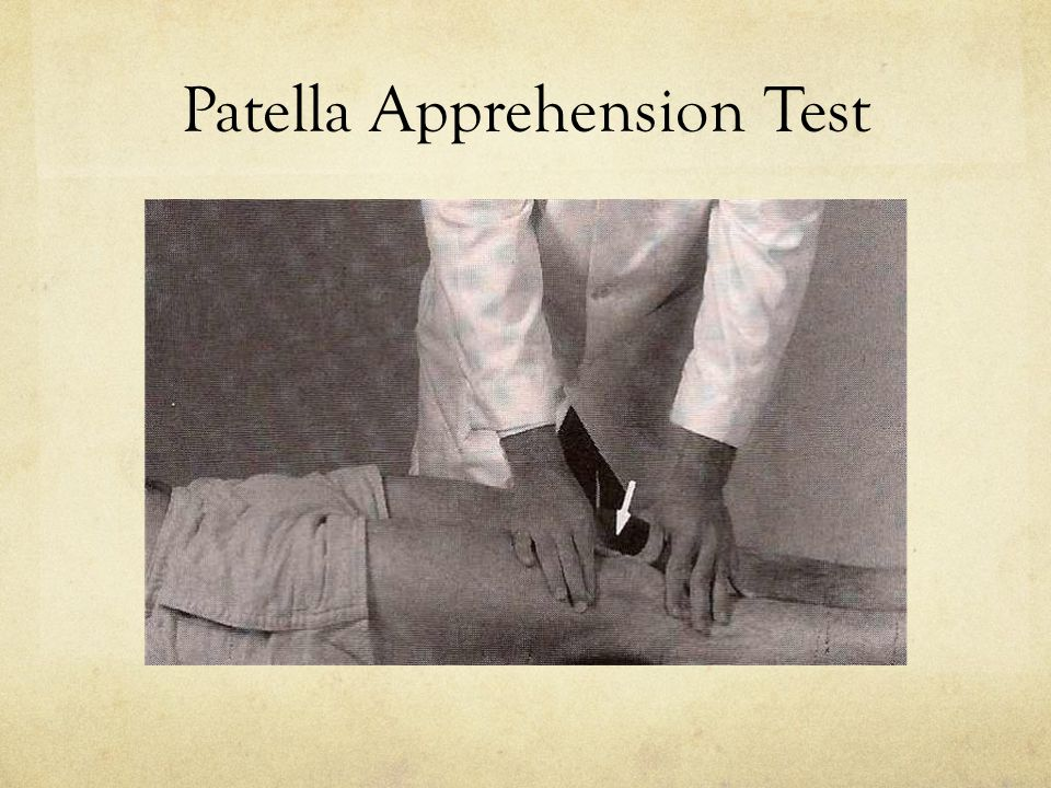 Patella Apprehension Test
