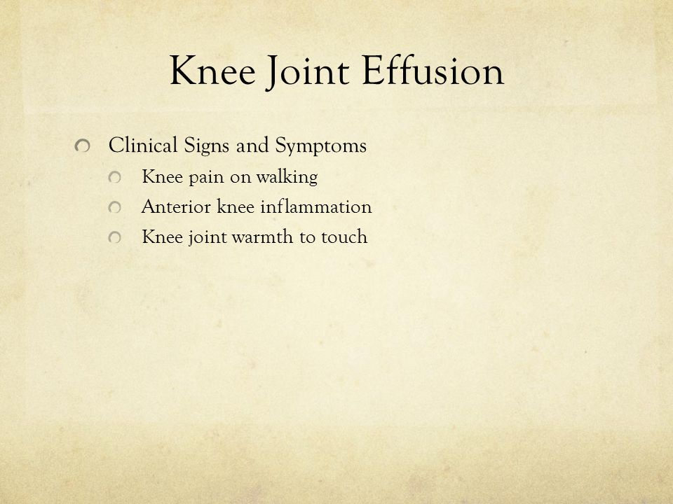 Knee Joint Effusion Clinical Signs and Symptoms Knee pain on walking