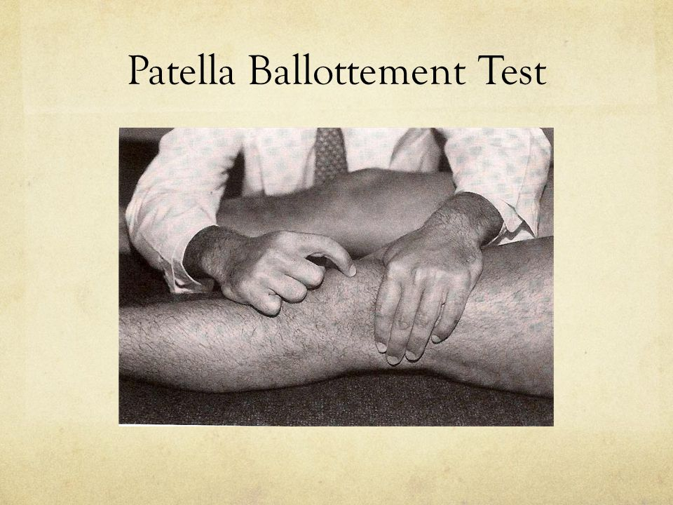 Patella Ballottement Test