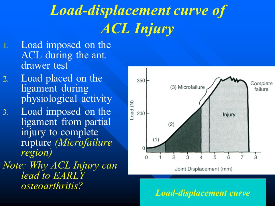 Load-displacement curve of ACL Injury