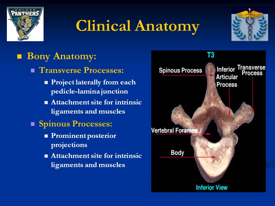 Clinical Anatomy Bony Anatomy: Transverse Processes: