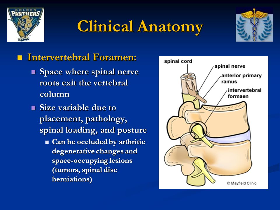 Clinical Anatomy Intervertebral Foramen: