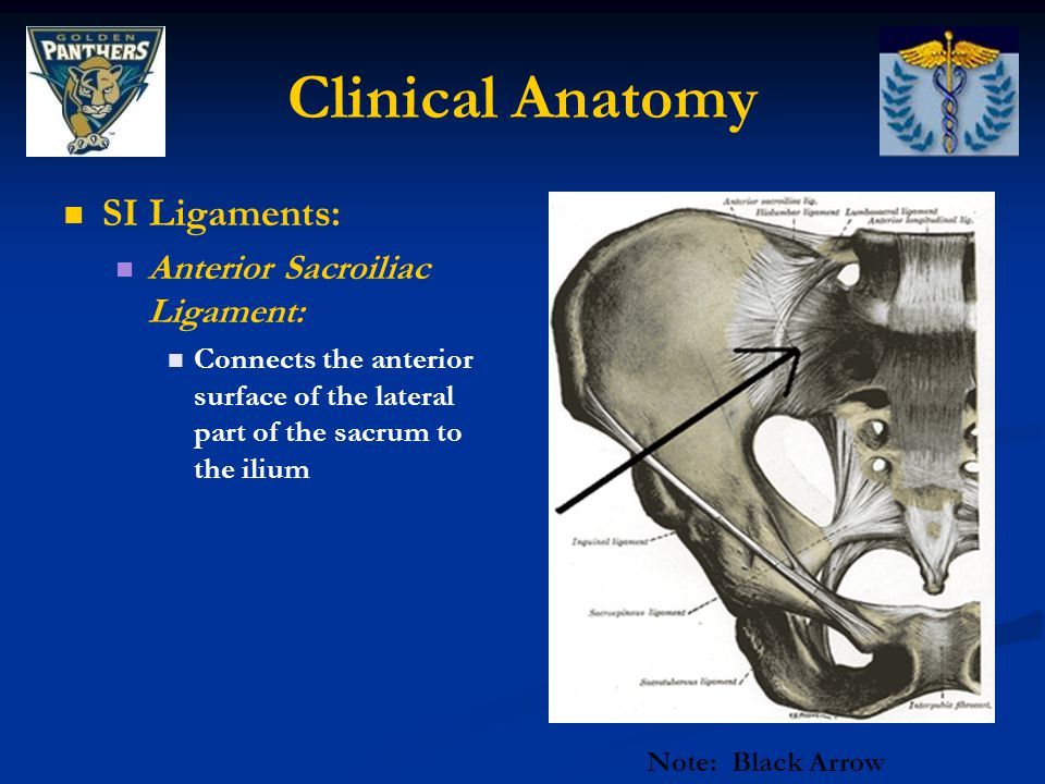 Clinical Anatomy SI Ligaments: Anterior Sacroiliac Ligament:
