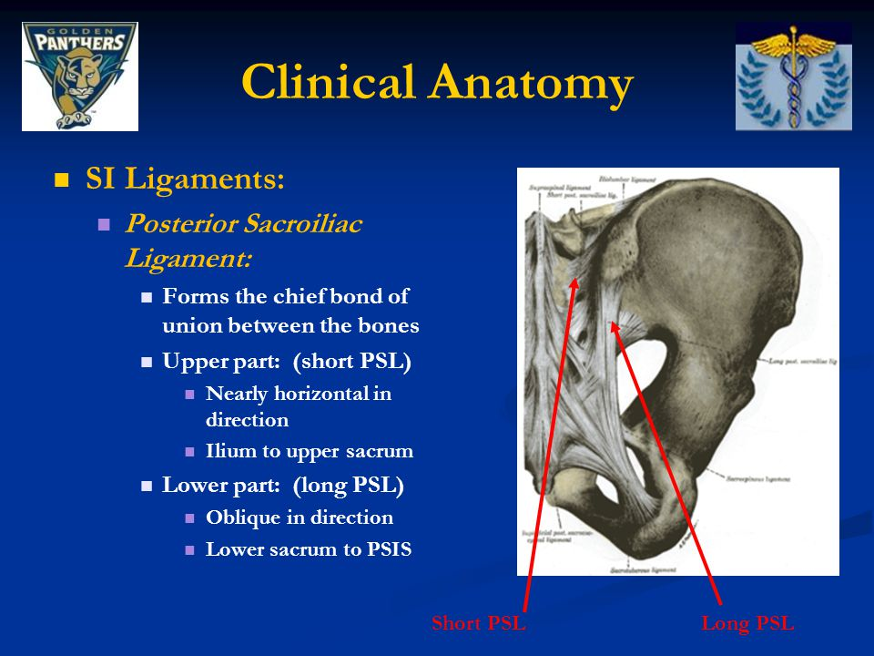 Clinical Anatomy SI Ligaments: Posterior Sacroiliac Ligament: