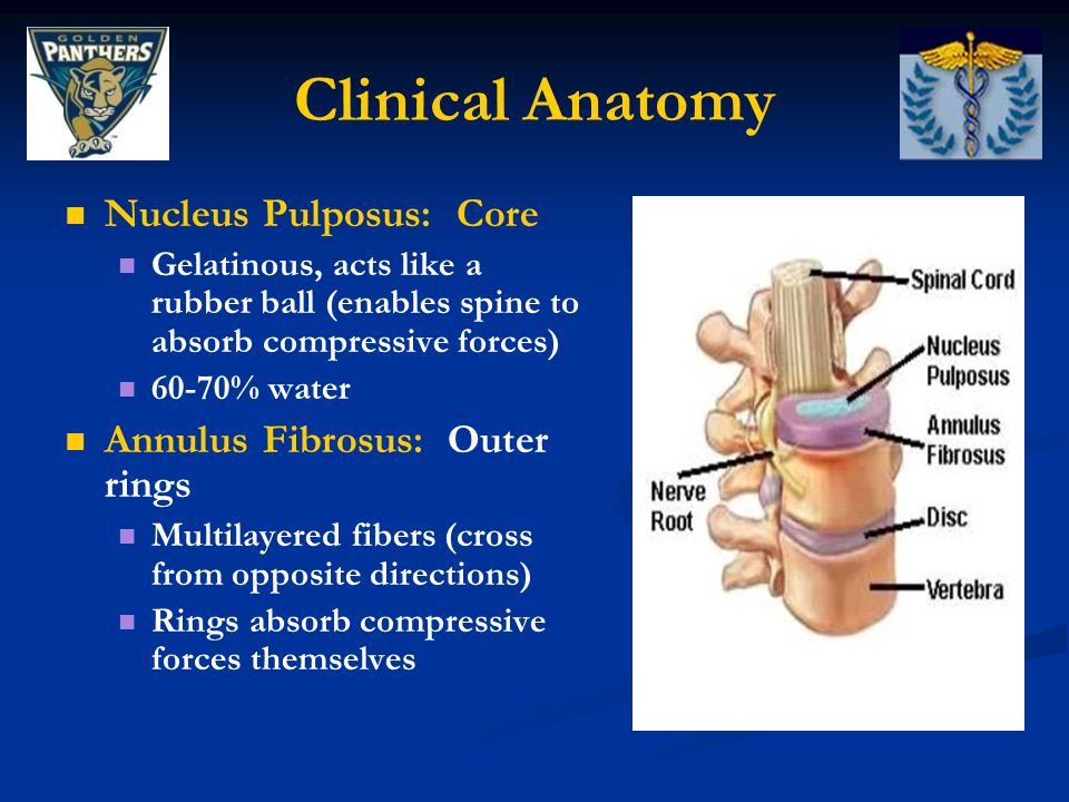 Clinical Anatomy Nucleus Pulposus: Core Annulus Fibrosus: Outer rings