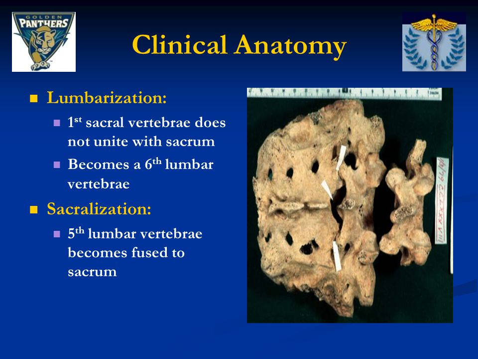 Clinical Anatomy Lumbarization: Sacralization: