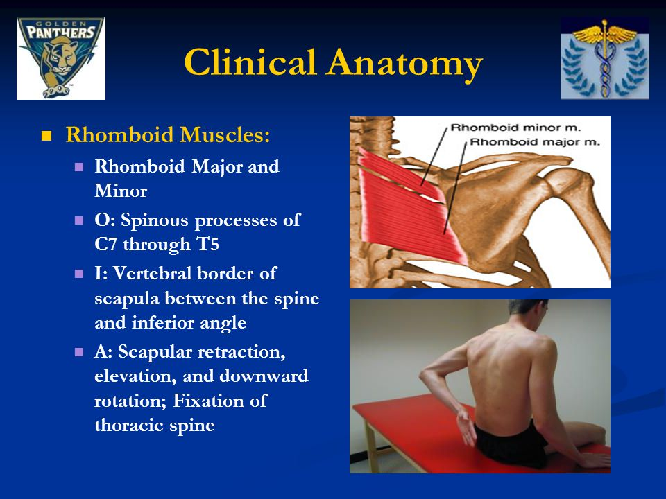 Clinical Anatomy Rhomboid Muscles: Rhomboid Major and Minor