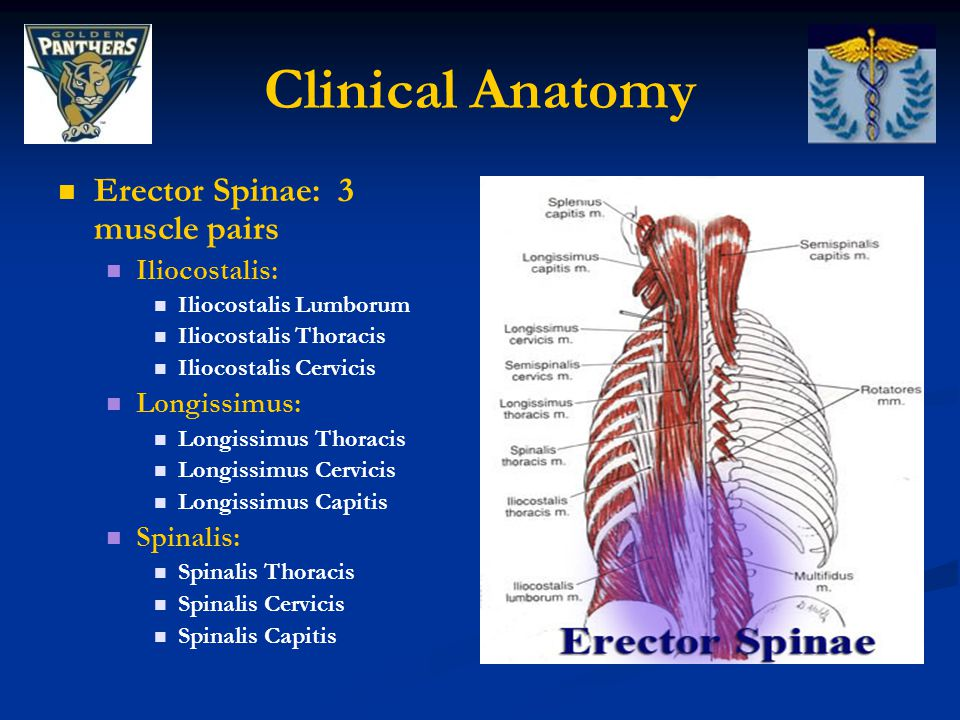 Clinical Anatomy Erector Spinae: 3 muscle pairs Iliocostalis: