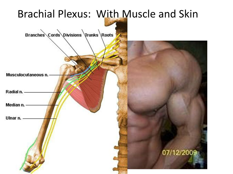 Brachial Plexus: With Muscle and Skin
