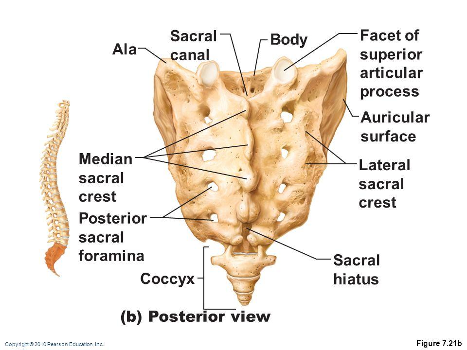 Sacral Facet of Body canal superior Ala articular process Auricular