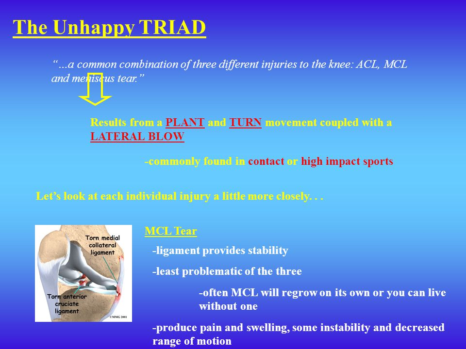 The Unhappy TRIAD …a common combination of three different injuries to the knee: ACL, MCL and meniscus tear.