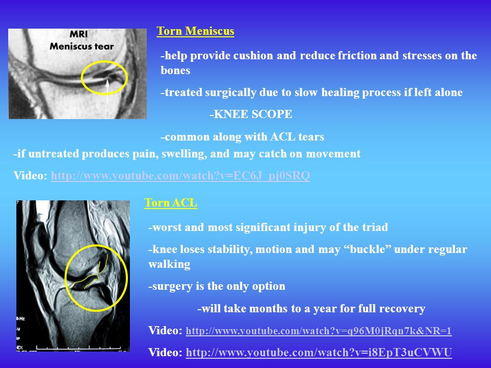 Torn Meniscus -help provide cushion and reduce friction and stresses on the bones. -treated surgically due to slow healing process if left alone.