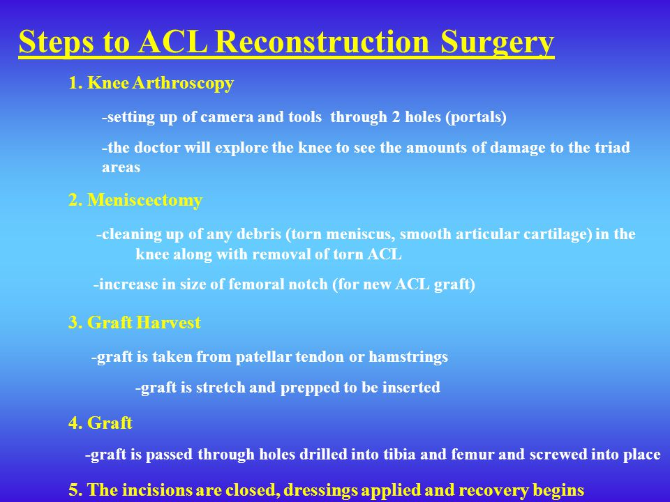 Steps to ACL Reconstruction Surgery