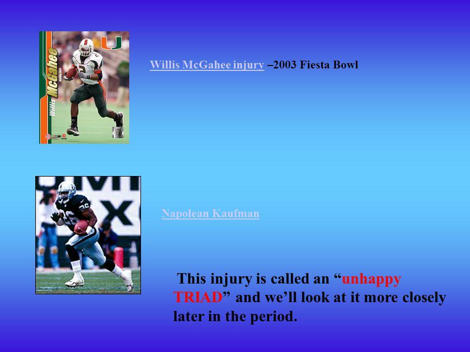 Willis McGahee injury –2003 Fiesta Bowl