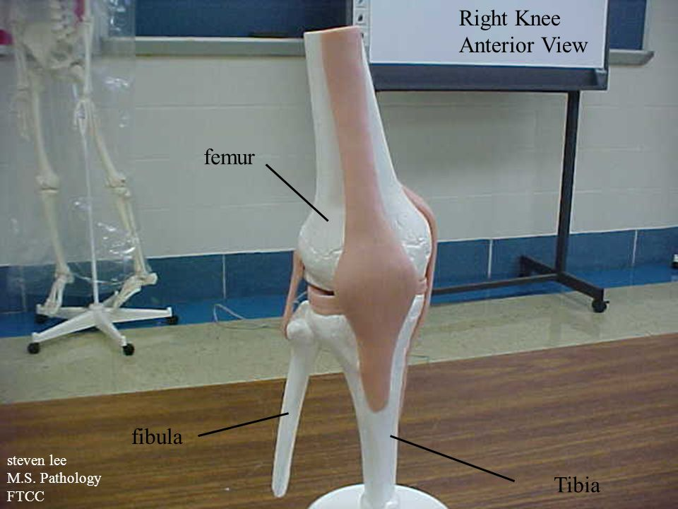 Right Knee Anterior View femur fibula Tibia steven lee M.S. Pathology