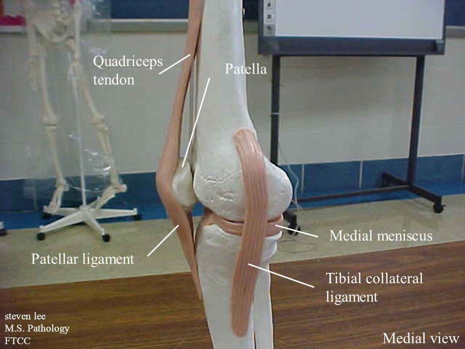 Quadriceps Patella tendon Medial meniscus Patellar ligament