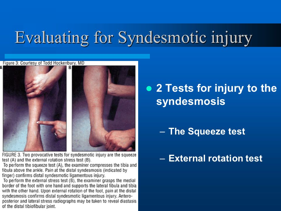 Evaluating for Syndesmotic injury