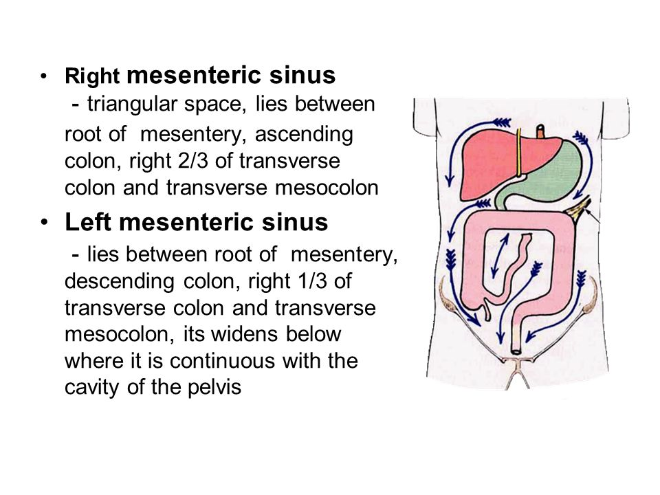Right mesenteric sinus -triangular space, lies between root of mesentery, ascending colon, right 2/3 of transverse colon and transverse mesocolon