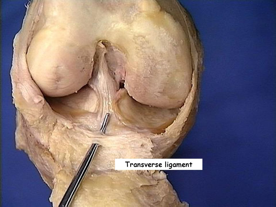 Transverse ligament