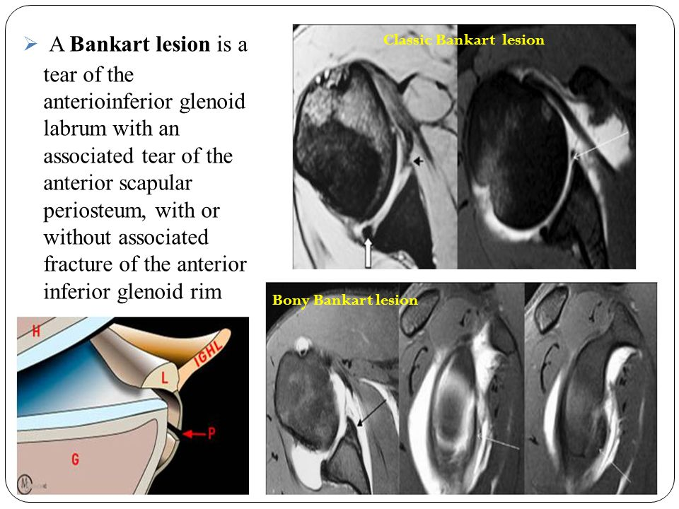 A Bankart lesion is a tear of the anterioinferior glenoid labrum with an associated tear of the anterior scapular periosteum, with or without associated fracture of the anterior inferior glenoid rim