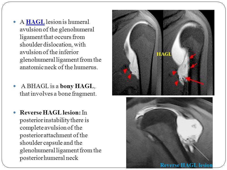 A BHAGL is a bony HAGL, that involves a bone fragment.