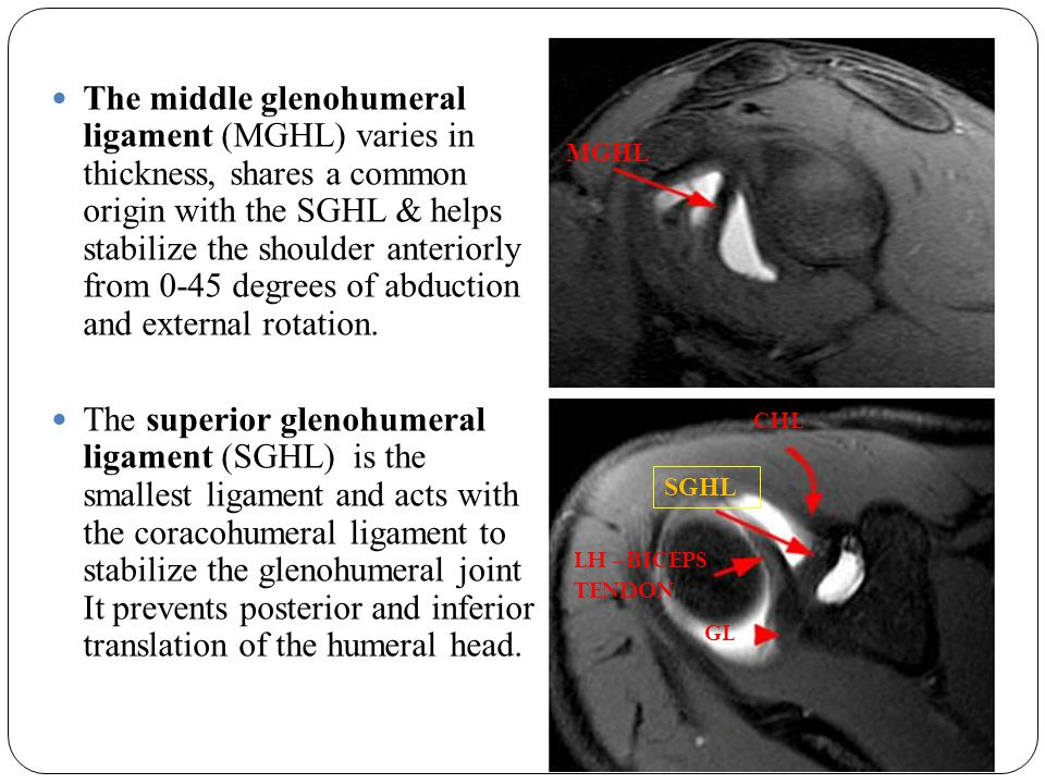 The middle glenohumeral ligament (MGHL) varies in thickness, shares a common origin with the SGHL & helps stabilize the shoulder anteriorly from 0-45 degrees of abduction and external rotation.
