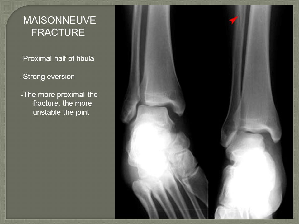 MAISONNEUVE FRACTURE -Proximal half of fibula -Strong eversion