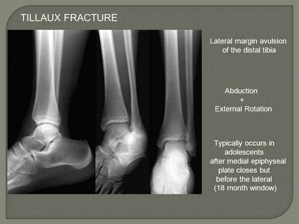 TILLAUX FRACTURE Lateral margin avulsion of the distal tibia Abduction