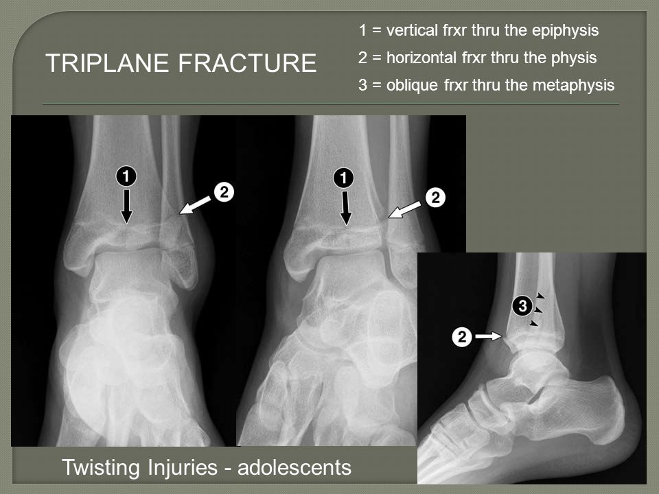 TRIPLANE FRACTURE Twisting Injuries - adolescents
