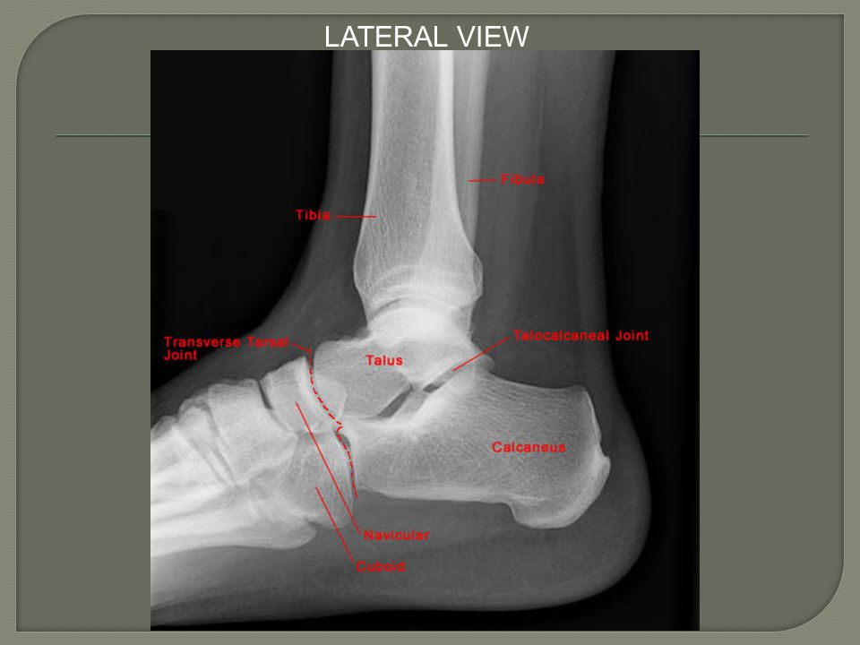 LATERAL VIEW Standard radiographic examination of the ankle includes AP, lateral, and mortise views of the joint.
