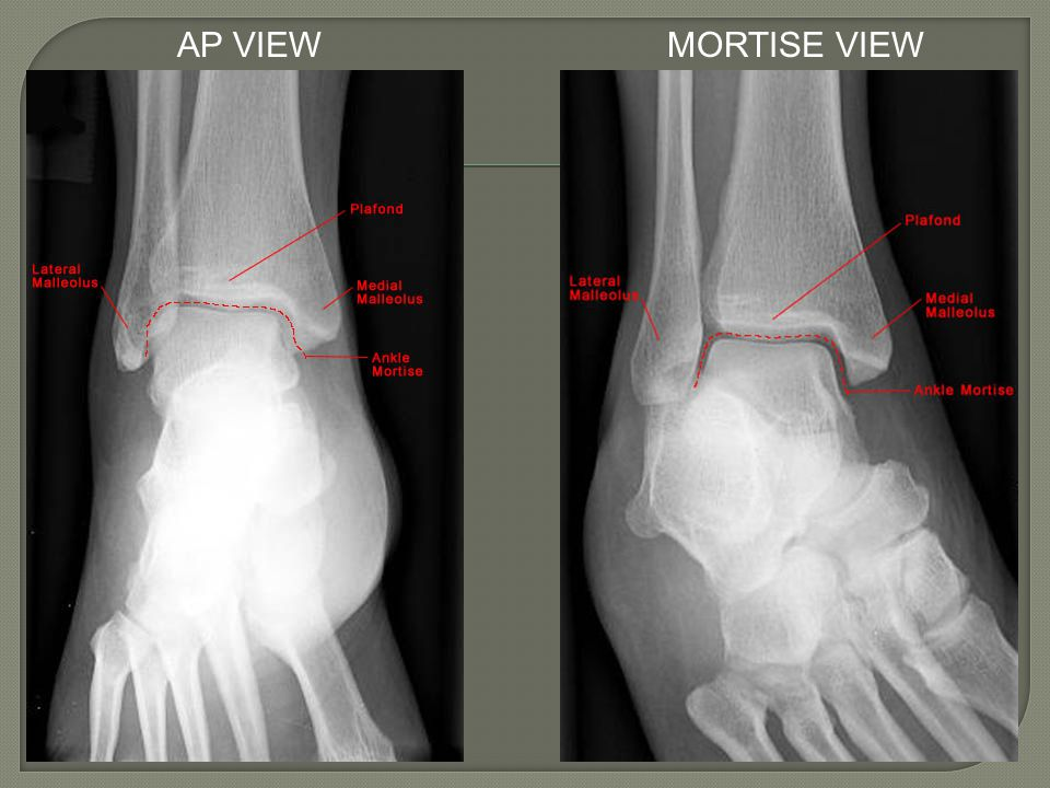 AP VIEW MORTISE VIEW http://www.med-ed.virginia.edu/courses/rad/ext/8ankle/01anatomy.html