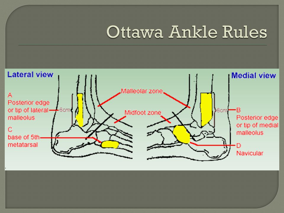Ottawa Ankle Rules http://www.gp-training.net/rheum/ottawa.htm