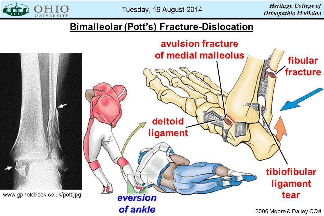 Bimalleolar (Pott's) Fracture-Dislocation