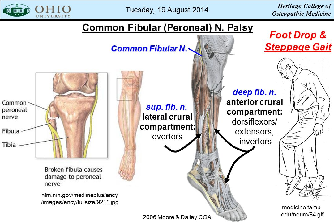 Inversion Ankle Sprains - ppt video online download
