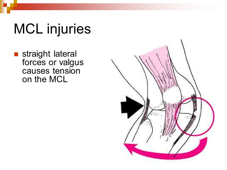 MCL injuries straight lateral forces or valgus causes tension on the MCL