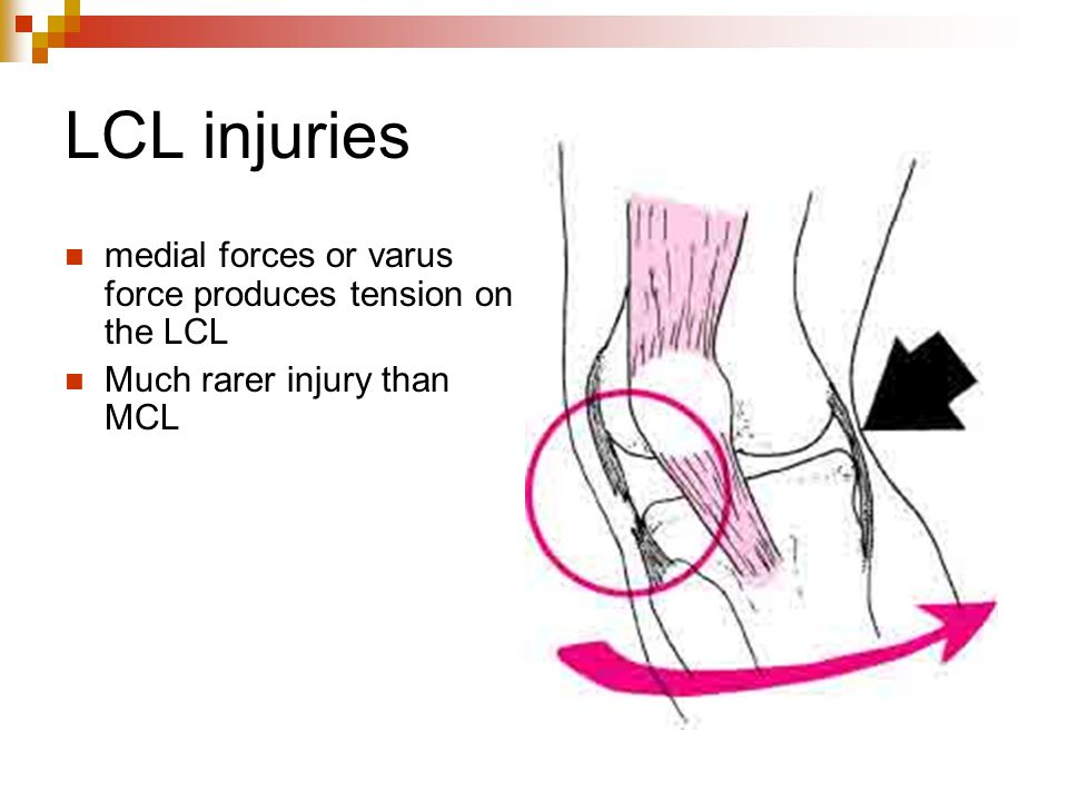 LCL injuries medial forces or varus force produces tension on the LCL