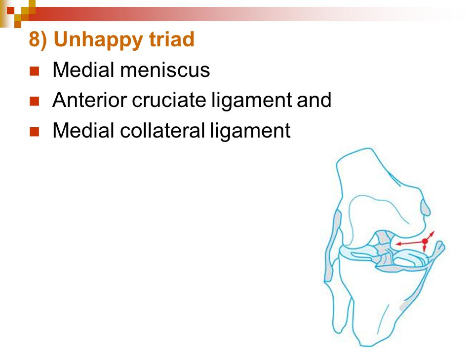 8) Unhappy triad Medial meniscus Anterior cruciate ligament and Medial collateral ligament