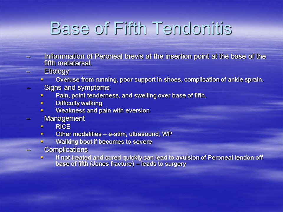 Base of Fifth Tendonitis