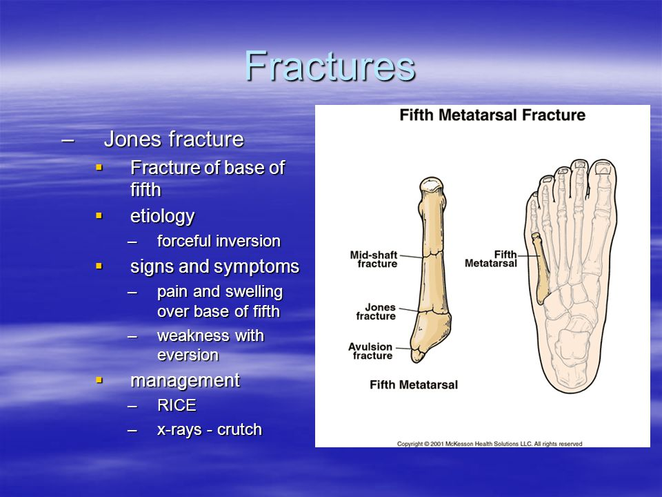 Fractures Jones fracture Fracture of base of fifth etiology