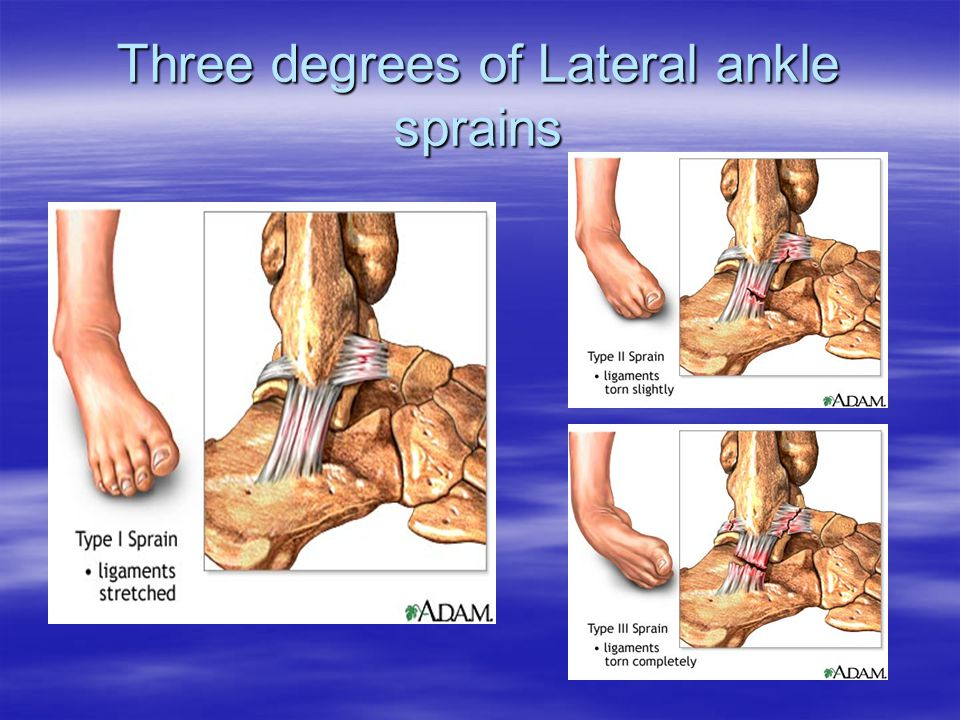 Three degrees of Lateral ankle sprains