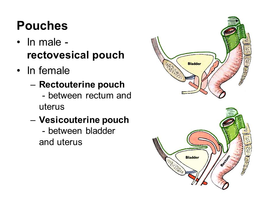 Pouches In male-rectovesical pouch In female